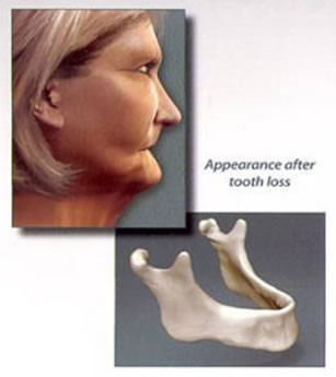 Schenectady Tooth Implants